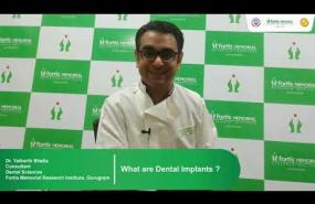 Dental Implants | Dr. Yatharth Bhatia